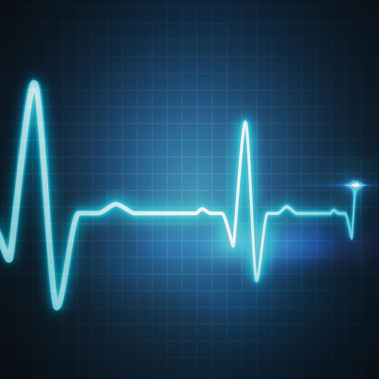 Cardiocheck